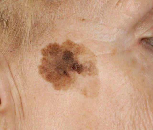 Старческие папилломы: причины и лечение