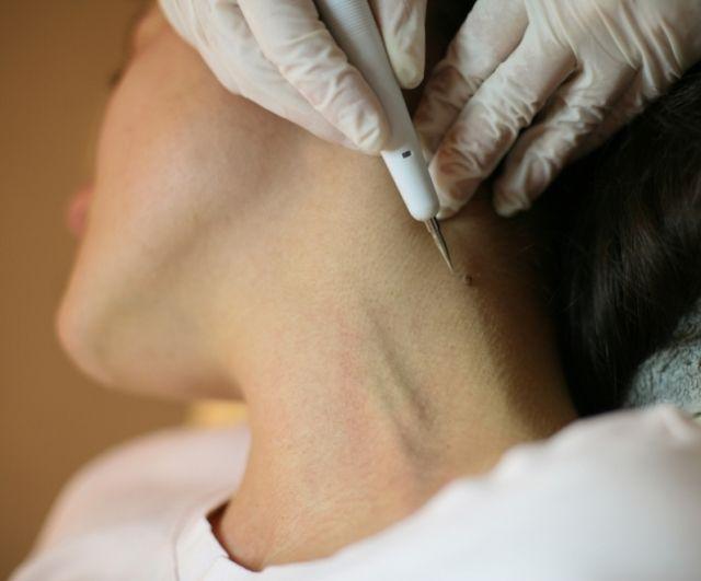Удаление папилломы на шее у беременной женщины