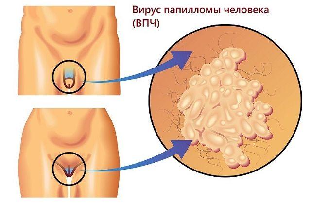 Области появления аногенитальных бородавок у мужчин и женщин