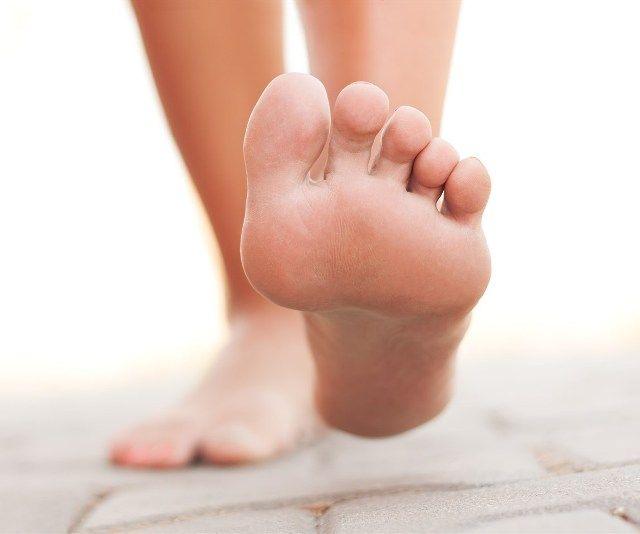 Удаление папиллом на ногах салициловой кислотой
