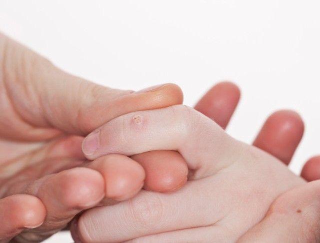 Плоские папилломы на руках у ребенка