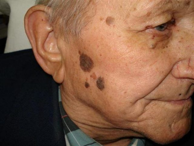 Себорейный кератоз на щеке пожилого мужчины