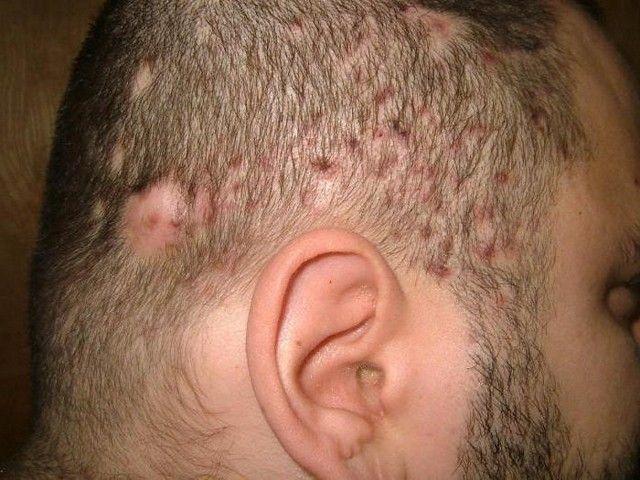 Фолликулит гофмана волосистой части головы 24