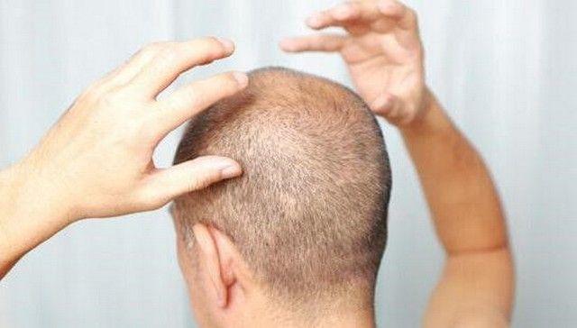 Фолликулит гофмана волосистой части головы 29