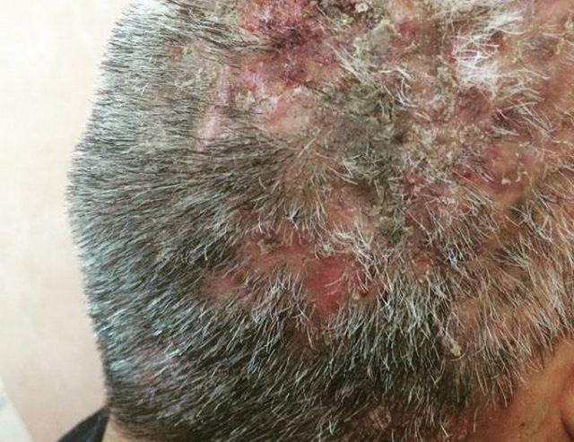 Фолликулит гофмана волосистой части головы 26