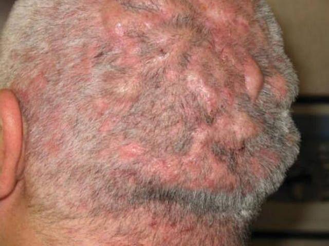 Фолликулит гофмана волосистой части головы 25