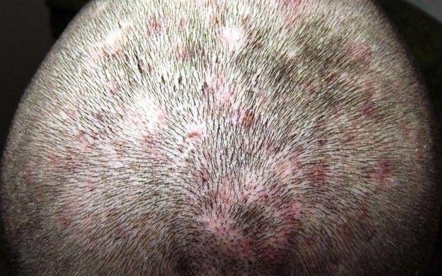 Фолликулит волосистой части головы фото