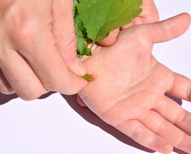 Чистотел против плоских папиллом на руках