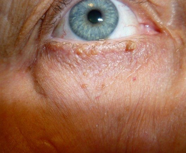 Как выглядит папиллома под глазом