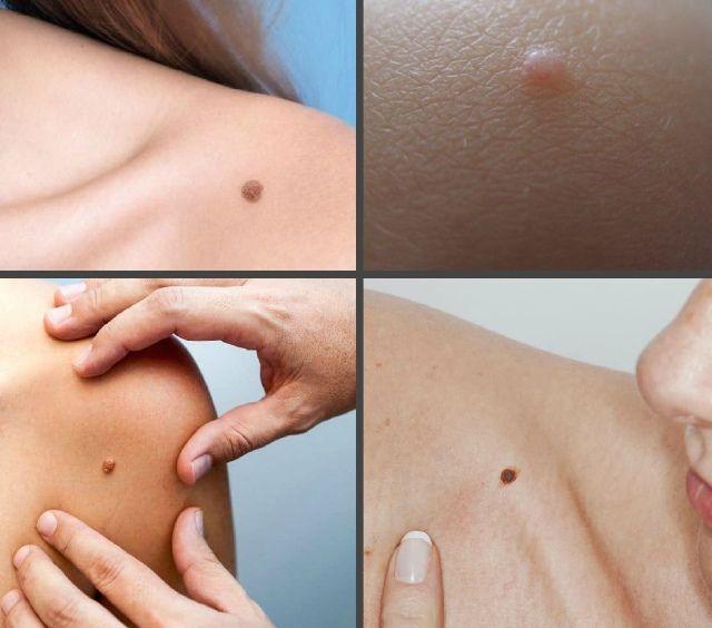 Как выглядят папилломы на плече
