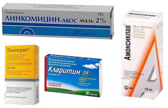 Лекарства,, применяющиеся для лечения фолликулита после бритья