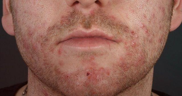 Фолликулит после бритья на лице