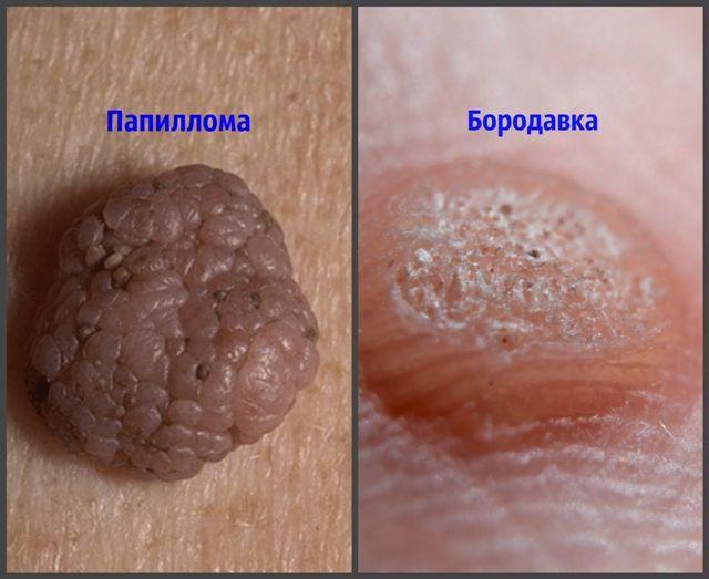 вирус папилломы человека и бородавки