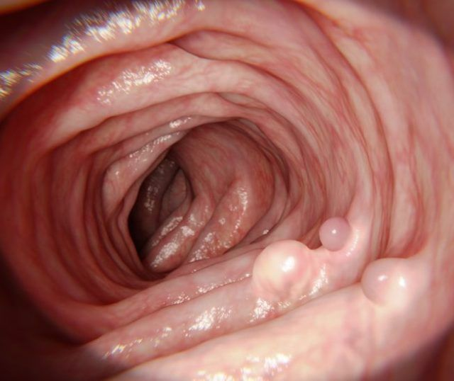 Полипы и папилломы отличие - Лечение папиллом