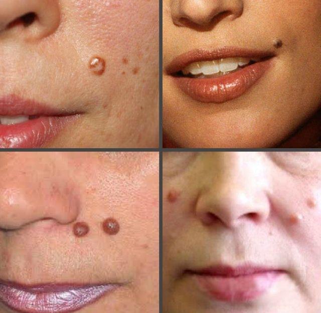 Как выглядят папилломы на лице у женщины