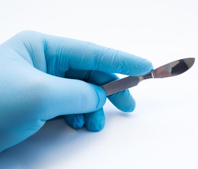 Хирургическое удаление папилломы на внутренней стороне щеки