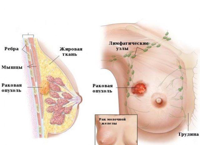 Папиллома или бородавка на груди и соске