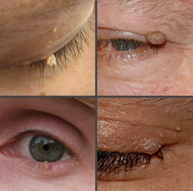 Как выглядят папилломы на веках глаз