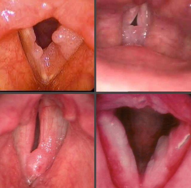 Папилломы на голосовых связках лечение народными средствами