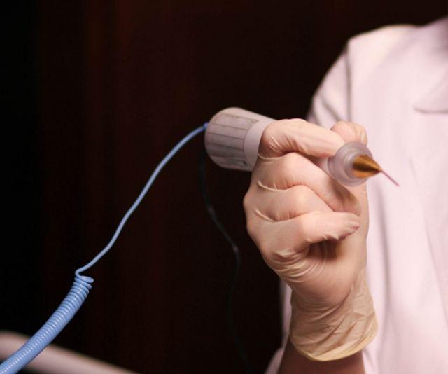 Фото папиллома на внутренней стороне губы