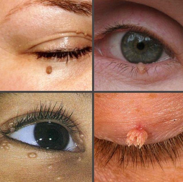 Как выглядят папилломы на глазах
