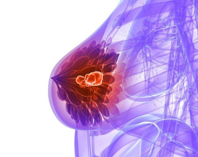 Схема внутрипротоковой папилломы молочной железы