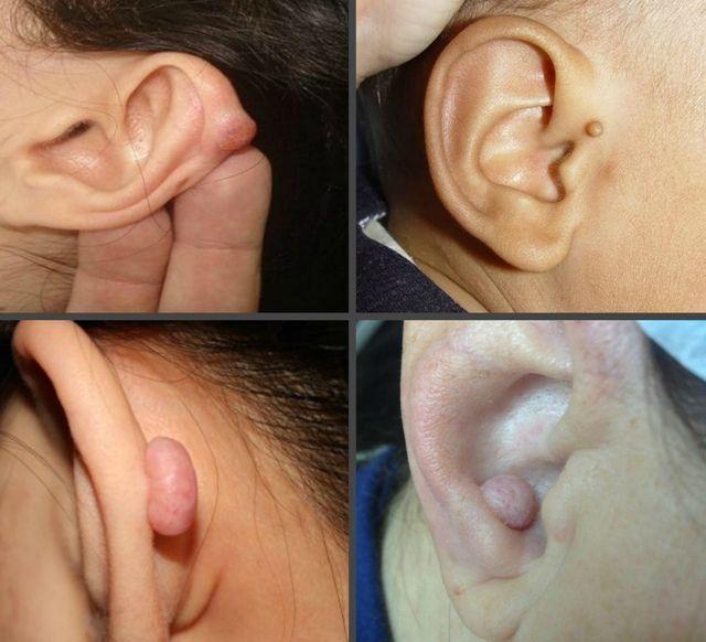 Как вывести бородавку с уха thumbnail