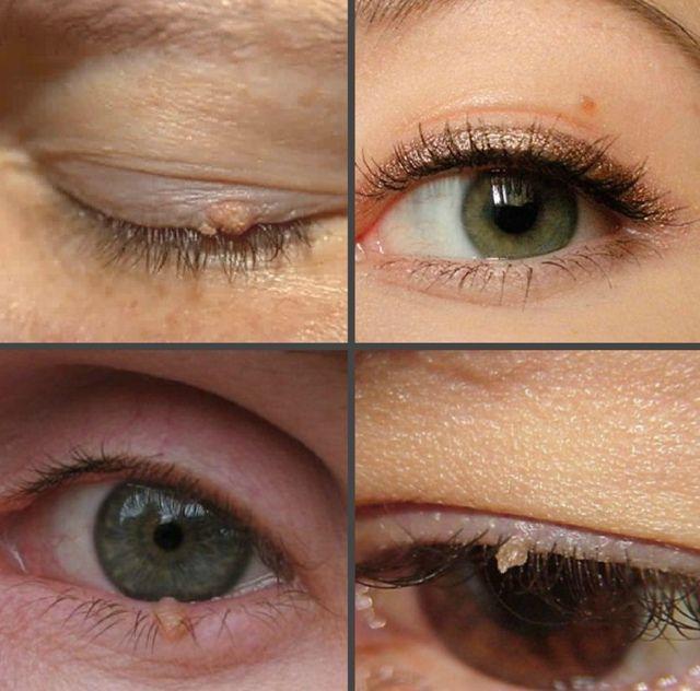 Как выглядят бородавки на глазу