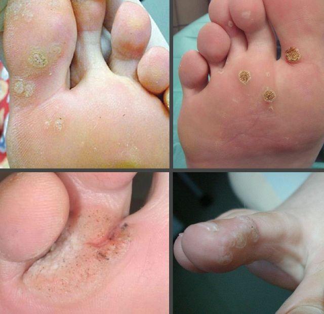 Как выглядят бородавки на пальце ноги